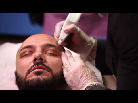 Dr David Jack - Plexr blepharoplasty eyelid treatment