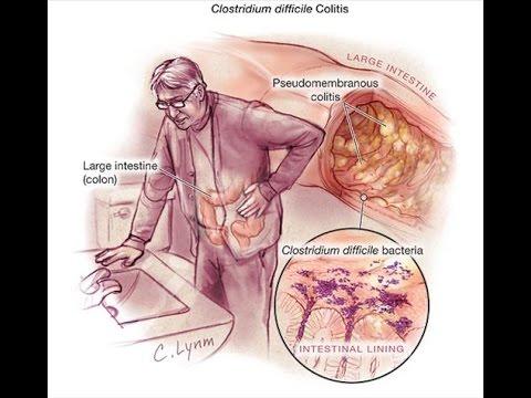Příznaky diabetu a jeho patogenezi
