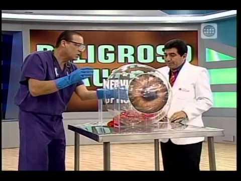 OSL hipertensión
