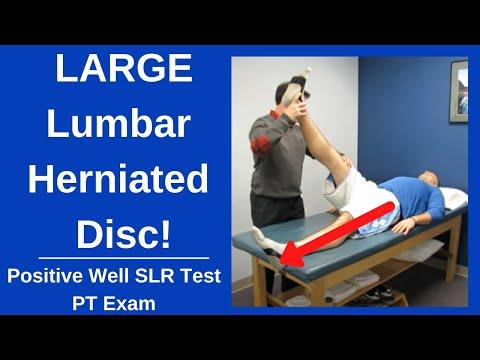 Schwangerschaft und Rückenschmerzen