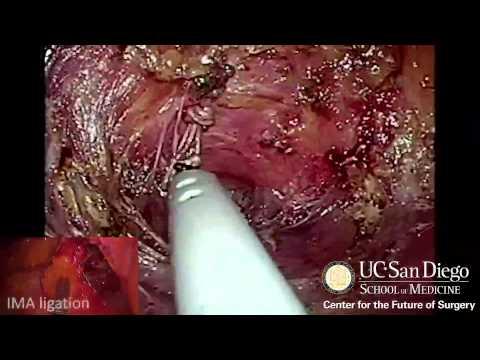 Papilloma in urinary bladder