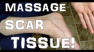 Muscle Scar Tissue Massage: Why To Do It