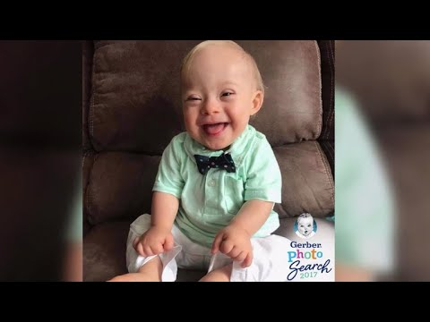 New Gerber baby is first ever with Down syndrome