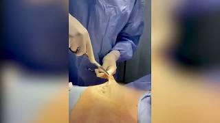 Gynecomastia Gland Excision - Puffy Nipples