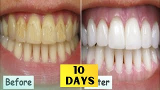 HOW TO CURE PYRIA / PYORRHEA in just 10 days