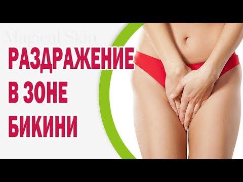 Пигментация кожи при венозном расширении