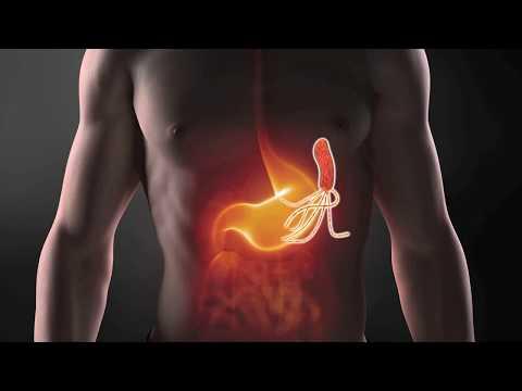Che applica linfiammazione della prostata
