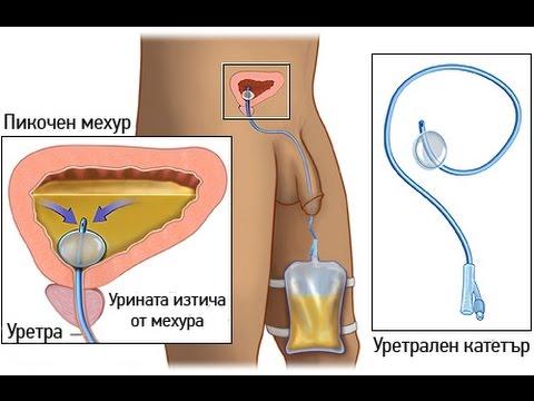 За простатата масаж урологични