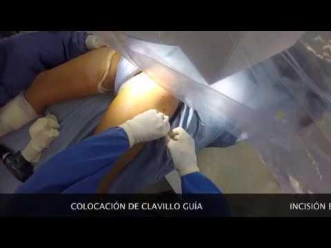 Cómo tratar la coxartrosis, el tratamiento de la cadera