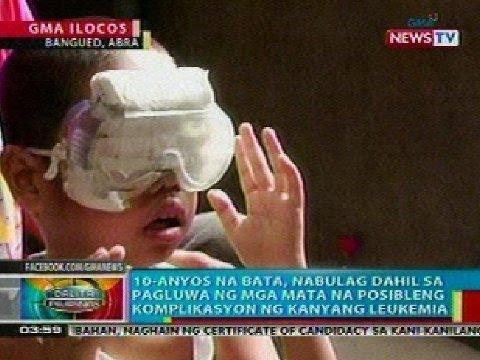 Face mask na may honey sa mga mantsa