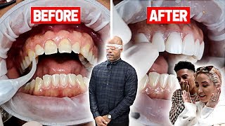 SURPRISING OUR ASSISTANT WITH BRAND NEW TEETH!!! **VERY EMOTIONAL**
