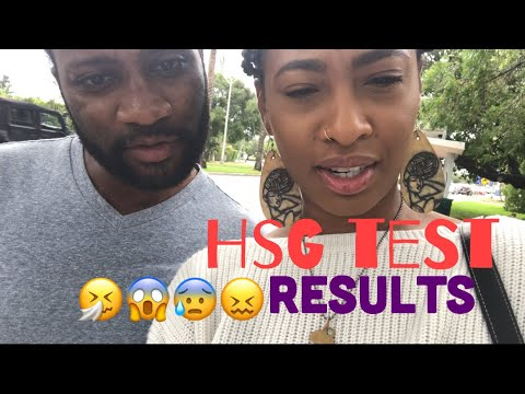 HSG INFERTILITY TEST & RESULTS VLOG