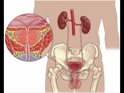 Предстательная железа лимфаденопатия