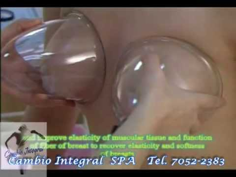 Reducir el pecho de silicio