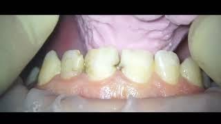 Мокап , примерка макета зубов , перенос макета бушующих зубов без препарирования зубов , mockup
