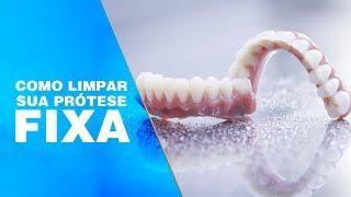 Como Limpar Prótese Com Implantes (Protocolo)