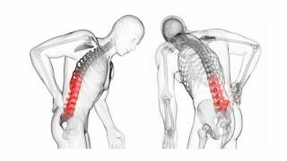 Difference Between Herniated and Bulging Disc