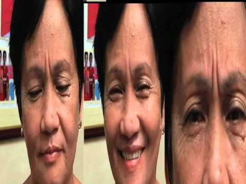 Kung paano upang matiyak na ako ay nagkaroon ng freckles