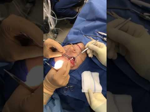 Eyelid Ptosis Surgery and Lower Blepharoplasty