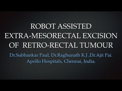 Robot Assisted Extra-Mesolectal Excision of Retro-Rectal Tumour