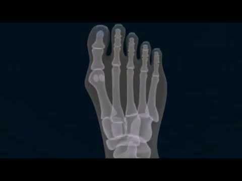 ความผิดปกติของ Varus อาการเท้า