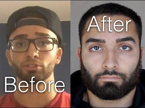 NoFap | 2+ Year Update | The Truth