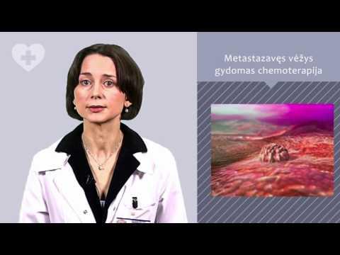 Saldymedžio šaknies prostatos