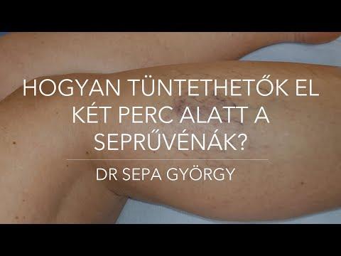 Terápiás fizikai edzés a visszér ellen