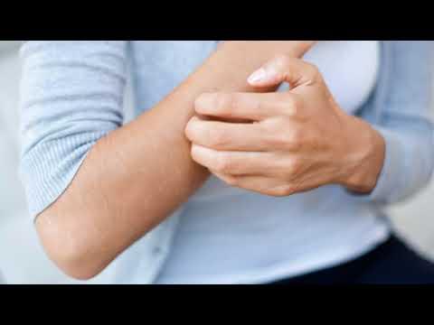 Гомеопатические препараты от пигментных пятен