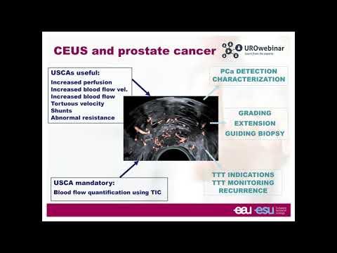 erection dopo operatione a la prostata