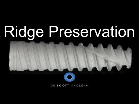 Ridge Preservation Technique - Creos Bone Grafting - Dental Implant