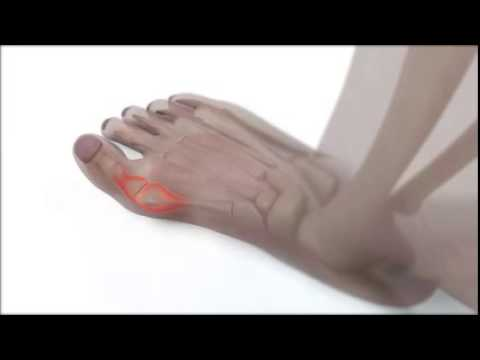 Scleroterapia di vene delle estremità più basse in Togliatti