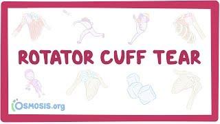 Rotator cuff tears