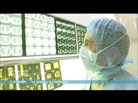 Le candida albikans le traitement des ongles