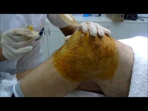 No retroceder en osteocondrosis