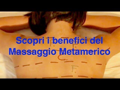 Complicanza di lussazione dellarticolazione della spalla