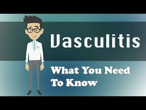 Video Vasculitis - What You Need To Know
