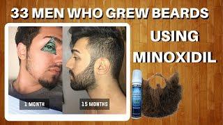 33 Men Who Grew Beards Using Minoxidil | The Minox Beard Spot | Minoxidil Beard Showcase