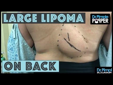 Minzione frequente nelle donne tirare il mal di schiena