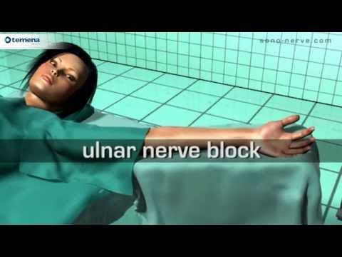 Injectarea medicamentului în articulația umărului