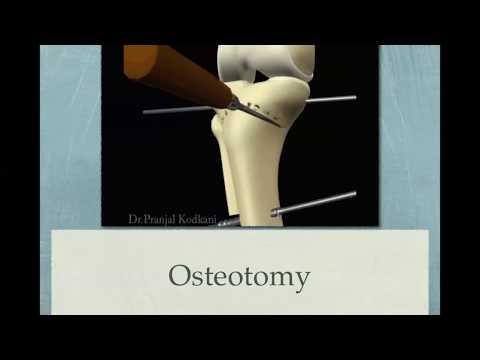 Artroza durerilor de călcâie a articulației genunchiului