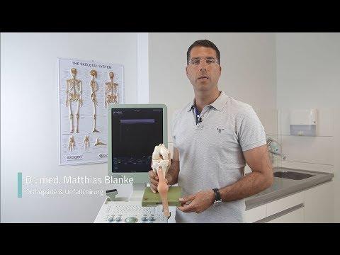 Was ist eine Entzündung der Gelenke und wie sie behandeln