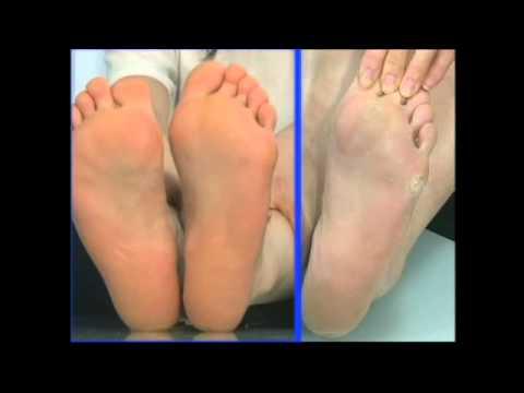 Che fare se lunghia su un trattamento di gamba di pollice è cresciuta