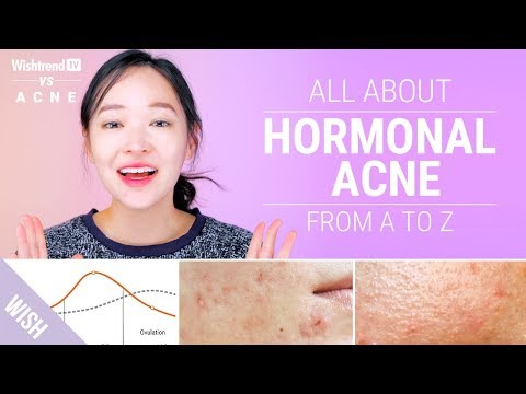 How to Cure Hormonal Acne : Lifestyle & Skincare Tips! | Wishtrend TV VS ACNE