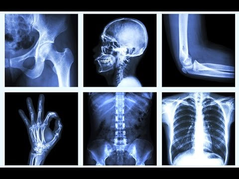 Video Natural Bone Strength Remedy for Osteoporosis - How to Get Strong Bones!
