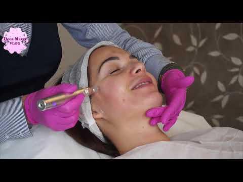Tratament pentru deformarea artrozei articulației umărului