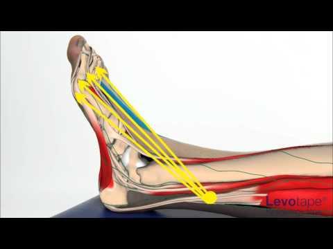 Ciò che una malattia gonartrosi al ginocchio