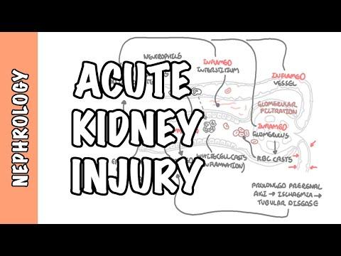 Ostre uszkodzenie nerek (AKI) - patofizjologia oraz przyczyny przednerkowe, nerkowe i pozanerkowe