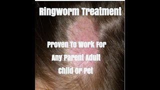 how to cure ringworm fast - Free video search site - Findclip Net