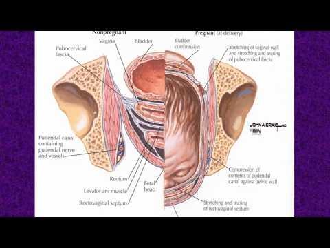 Birkenteer von Prostatakrebs